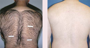 Pulsed Light Hair Removal System in Westchester ny
